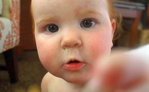 Насморк у грудничков: как помочь ребёнку
