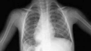 Беременность и туберкулёз