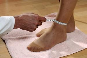Отекание ног у беременных женщин