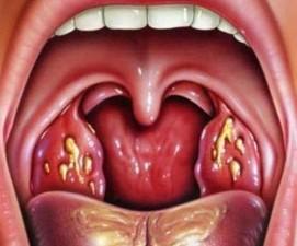 Ангина (острый тонзиллит) при беременности - симптомы, лечение и опасность