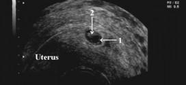 Признаки беременности на УЗИ: внематочная; многоплодная; замершая
